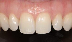 formation dentaire Invisalign go